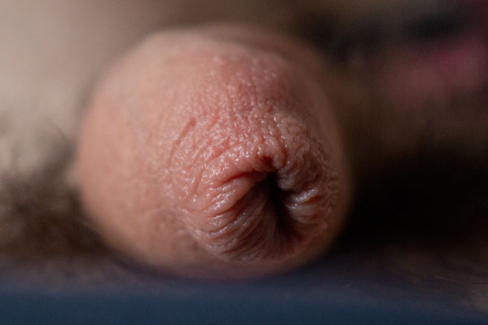 Macro shot of a penile rigged band on a blurred background